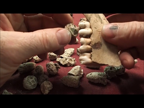 Civil War Hospital Pain Bullets: Busted